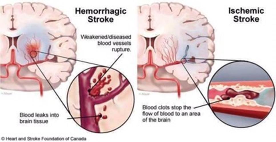 petua mengatasi stroke