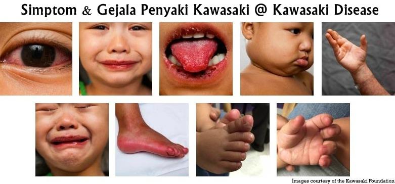 tanda-tanda penyakit kawasaki